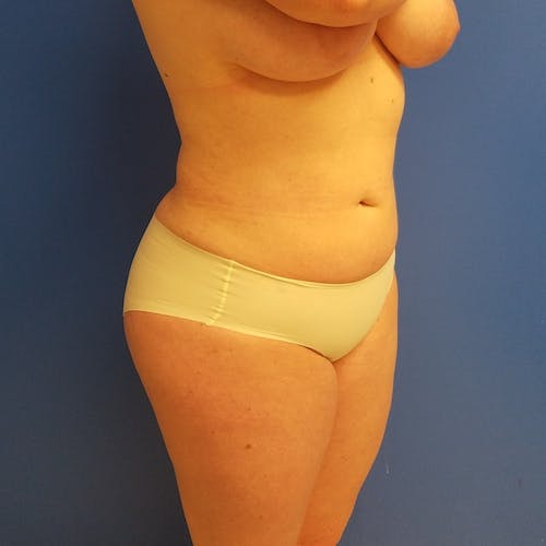 Abdominal Liposuction Gallery - Patient 3777200 - Image 6