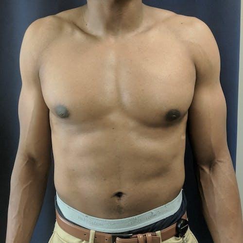 Gynecomastia Gallery - Patient 3777212 - Image 2