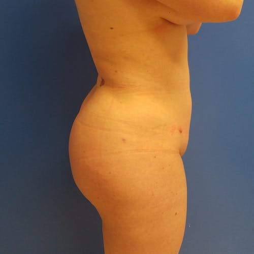 Abdominal Liposuction Gallery - Patient 3777200 - Image 8