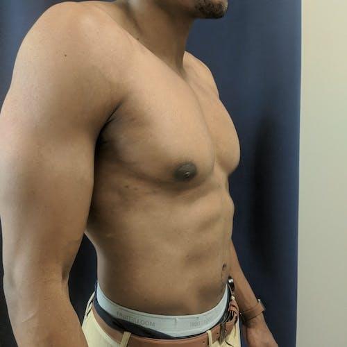Gynecomastia Gallery - Patient 3777212 - Image 4