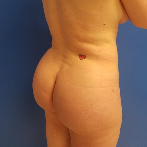 Abdominal Liposuction Gallery - Patient 3777200 - Image 10