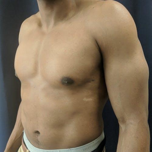 Gynecomastia Gallery - Patient 3777212 - Image 8