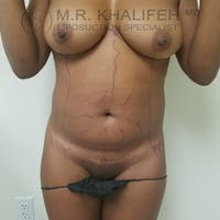 Abdominal Liposuction Gallery - Patient 3777221 - Image 1