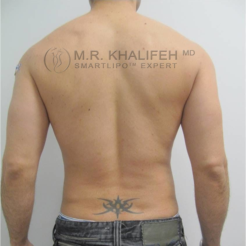 Male Liposuction Gallery - Patient 3777213 - Image 8