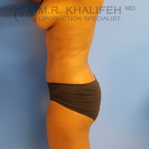 Abdominal Liposuction Gallery - Patient 3777221 - Image 6