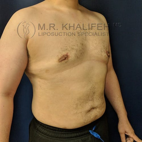 Male Liposuction Gallery - Patient 3819372 - Image 4