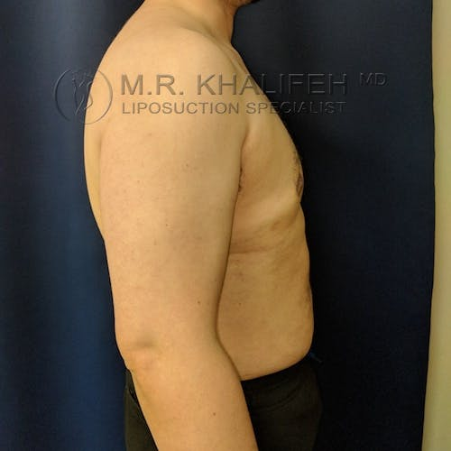 Male Liposuction Gallery - Patient 3819372 - Image 6