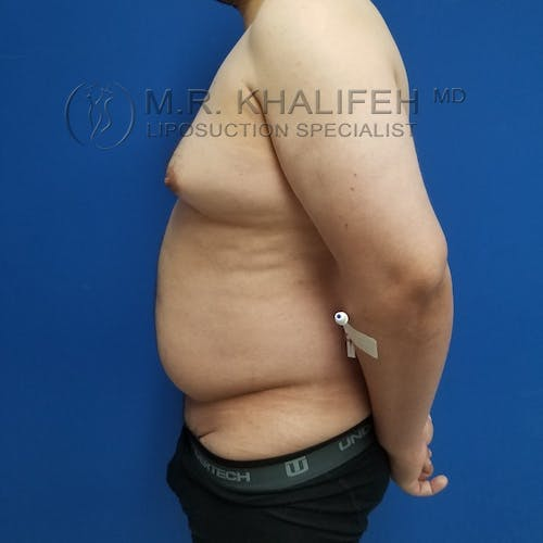 Male Liposuction Gallery - Patient 3819372 - Image 9