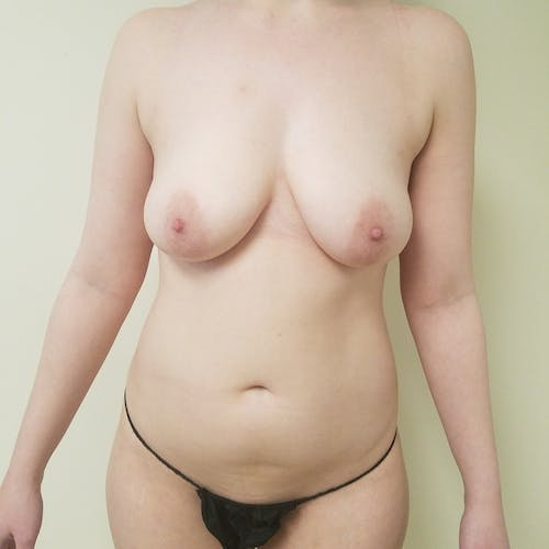 Abdominal Liposuction Gallery - Patient 3819579 - Image 1