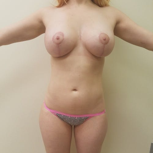 Abdominal Liposuction Gallery - Patient 3819579 - Image 2
