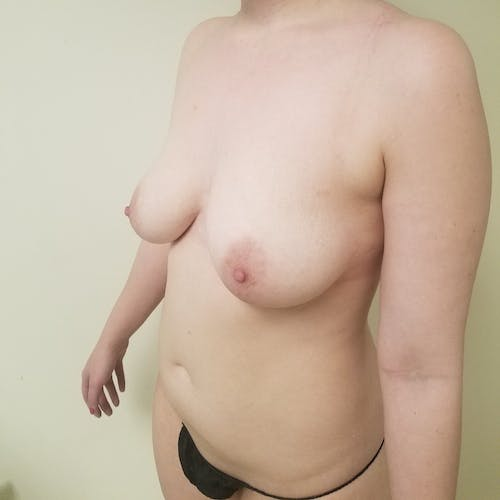 Abdominal Liposuction Gallery - Patient 3819579 - Image 7