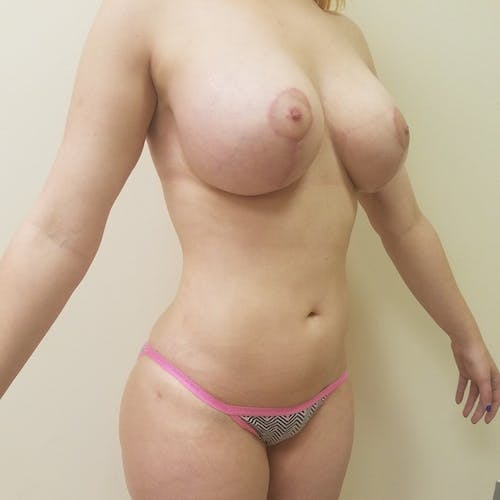 Abdominal Liposuction Gallery - Patient 3819579 - Image 10