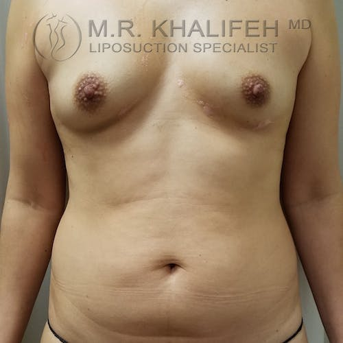 Abdominal Liposuction Gallery - Patient 3819632 - Image 1