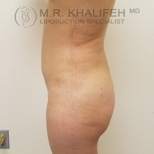 Abdominal Liposuction Gallery - Patient 3819632 - Image 4