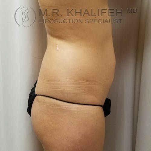 Abdominal Liposuction Gallery - Patient 3819632 - Image 5