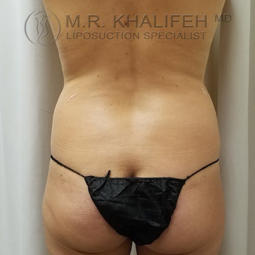 Abdominal Liposuction Gallery - Patient 3819632 - Image 7