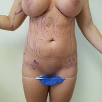 Abdominal Liposuction Gallery - Patient 3819677 - Image 1