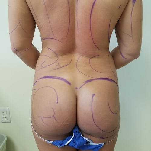 Abdominal Liposuction Gallery - Patient 3819677 - Image 3