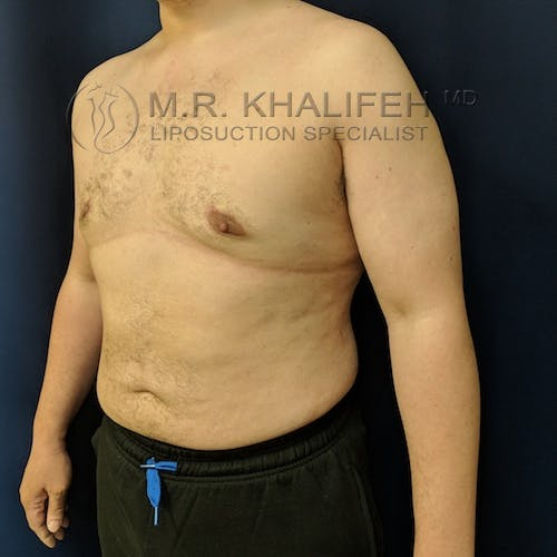Abdominal Liposuction Gallery - Patient 3819829 - Image 8