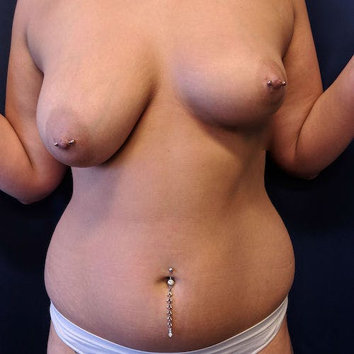 Abdominal Liposuction Gallery - Patient 3819932 - Image 1