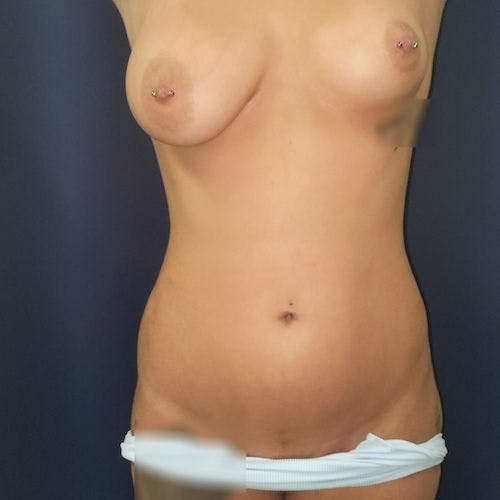 Abdominal Liposuction Gallery - Patient 3819932 - Image 2