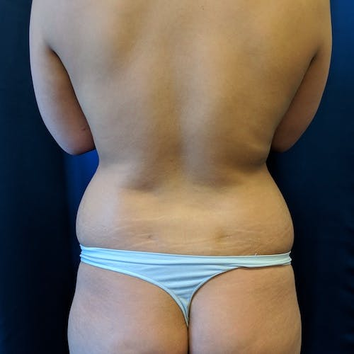 Abdominal Liposuction Gallery - Patient 3819932 - Image 3