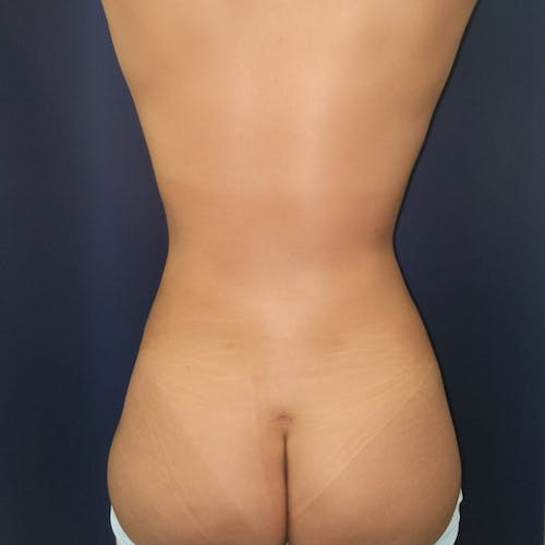 Abdominal Liposuction Gallery - Patient 3819932 - Image 4