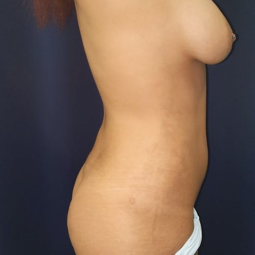 Abdominal Liposuction Gallery - Patient 3819932 - Image 6