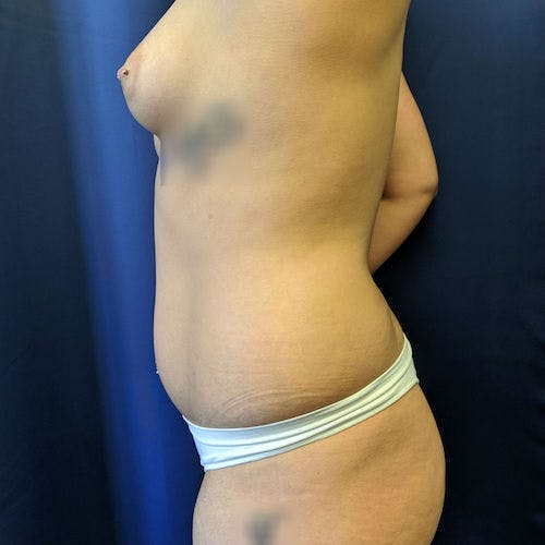 Abdominal Liposuction Gallery - Patient 3819932 - Image 7