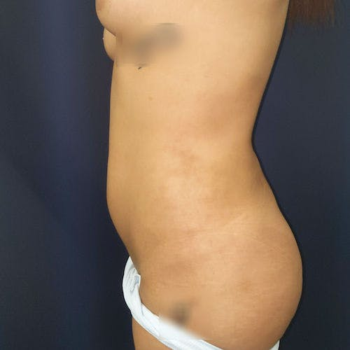 Abdominal Liposuction Gallery - Patient 3819932 - Image 8