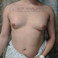Gynecomastia Gallery - Patient 3820083 - Image 1