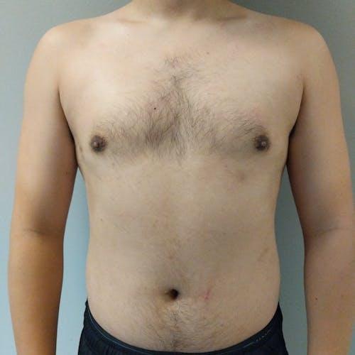 Gynecomastia Gallery - Patient 3820142 - Image 2