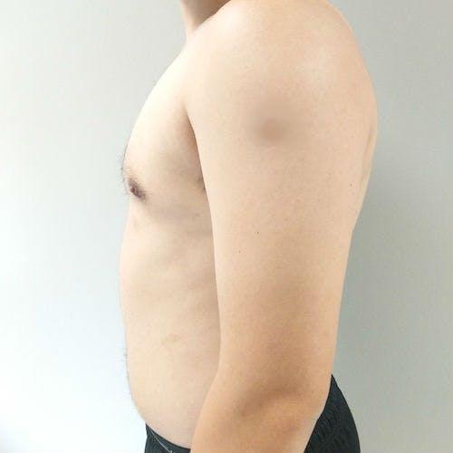 Gynecomastia Gallery - Patient 3820142 - Image 8