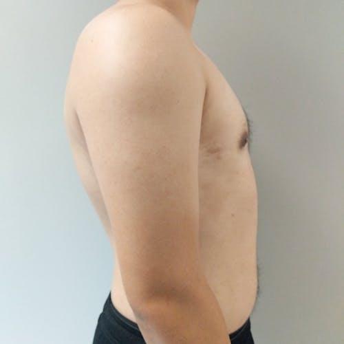Gynecomastia Gallery - Patient 3820142 - Image 10