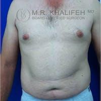 Gynecomastia Gallery - Patient 3820147 - Image 1