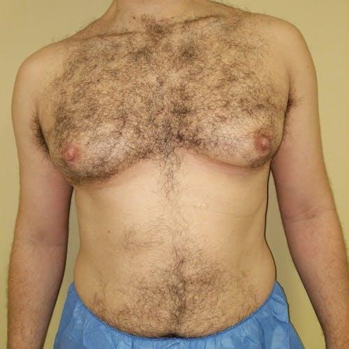 Gynecomastia Gallery - Patient 3820672 - Image 1