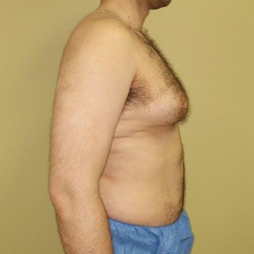 Gynecomastia Gallery - Patient 3820672 - Image 5