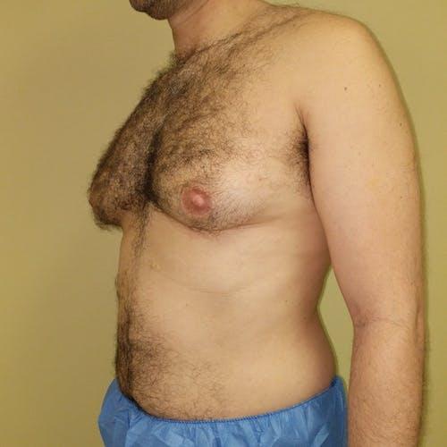Gynecomastia Gallery - Patient 3820672 - Image 7