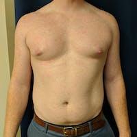 Gynecomastia Gallery - Patient 3820733 - Image 1