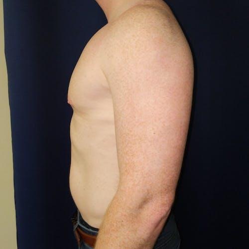 Gynecomastia Gallery - Patient 3820733 - Image 6