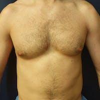 Gynecomastia Gallery - Patient 3820798 - Image 1