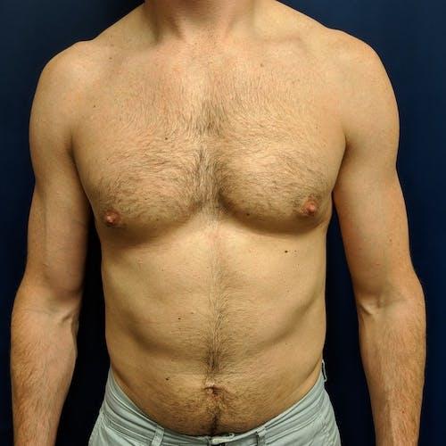 Gynecomastia Gallery - Patient 3820798 - Image 2