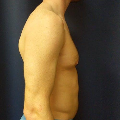 Gynecomastia Gallery - Patient 3820798 - Image 3