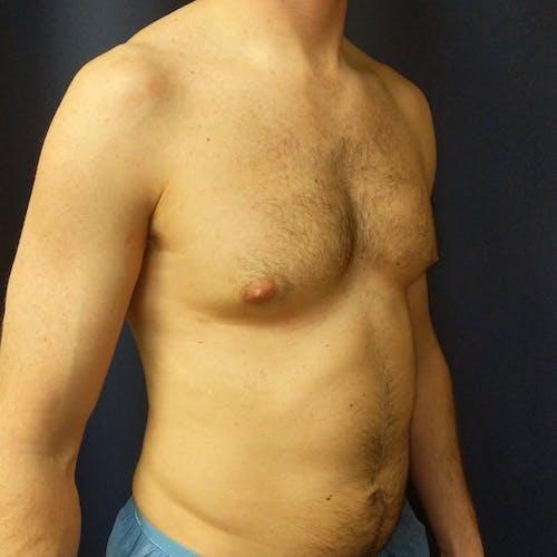 Gynecomastia Gallery - Patient 3820798 - Image 5
