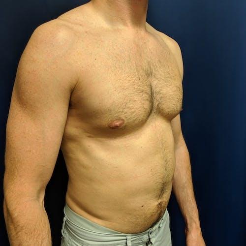 Gynecomastia Gallery - Patient 3820798 - Image 6