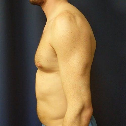 Gynecomastia Gallery - Patient 3820798 - Image 9