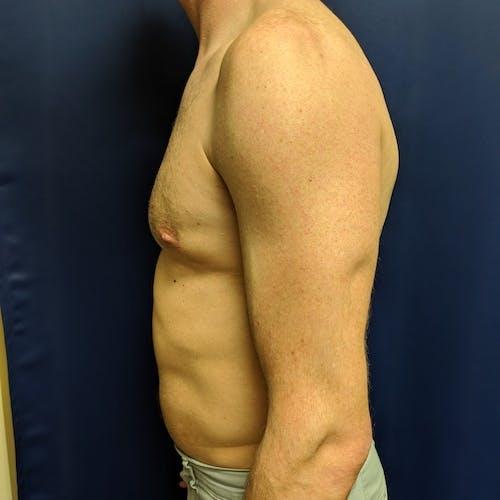 Gynecomastia Gallery - Patient 3820798 - Image 10
