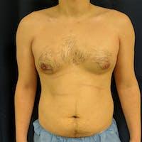 Gynecomastia Gallery - Patient 3820801 - Image 1