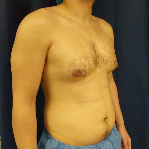 Gynecomastia Gallery - Patient 3820801 - Image 3