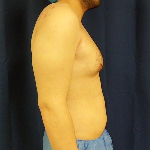 Gynecomastia Gallery - Patient 3820801 - Image 5